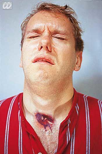 Tattoo Made wound