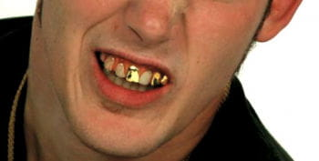 Gold Digger Veneer Teeth Pro
