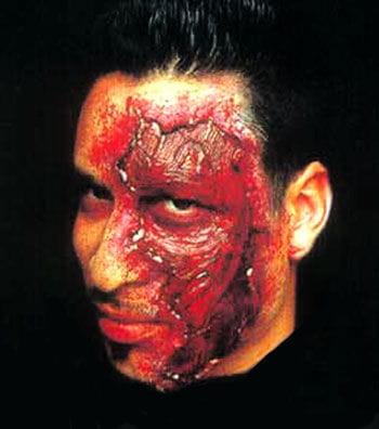 Säure Peeling Wunde