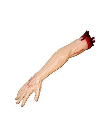 Severed arm with upper arm