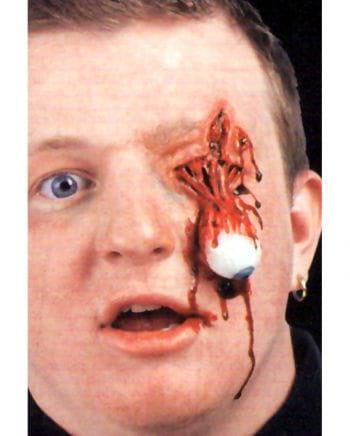 Eyeball trauma wound