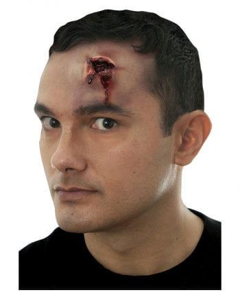 Gunshot wound / 38 Exit