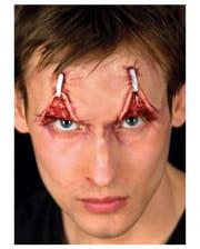 Augenlidstraffung Latexwunde