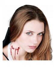 Vampire Bite Wound