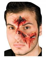 Metal splinters / Metal Attack wound