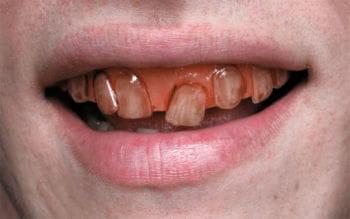 Rotten Goblin SFX Veneer Teeth