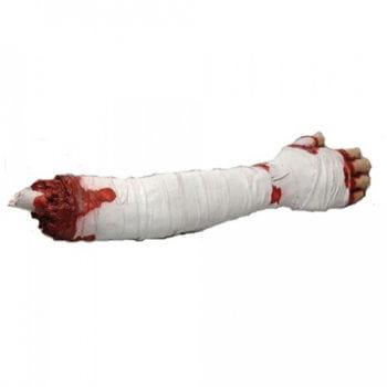 Chopped, bandaged arm