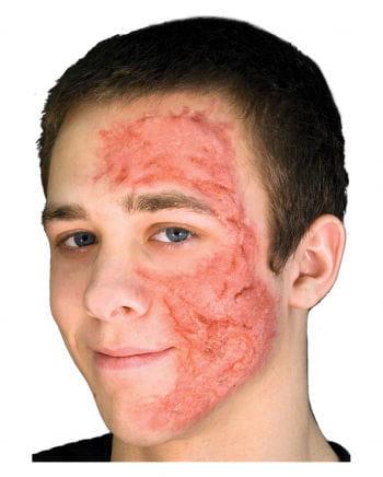 Burn Scar / Burn Gel